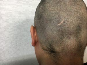 キャンプ王の後頭部